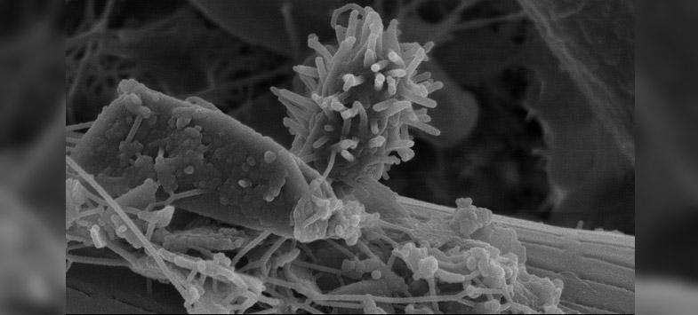most dangerous bacteria